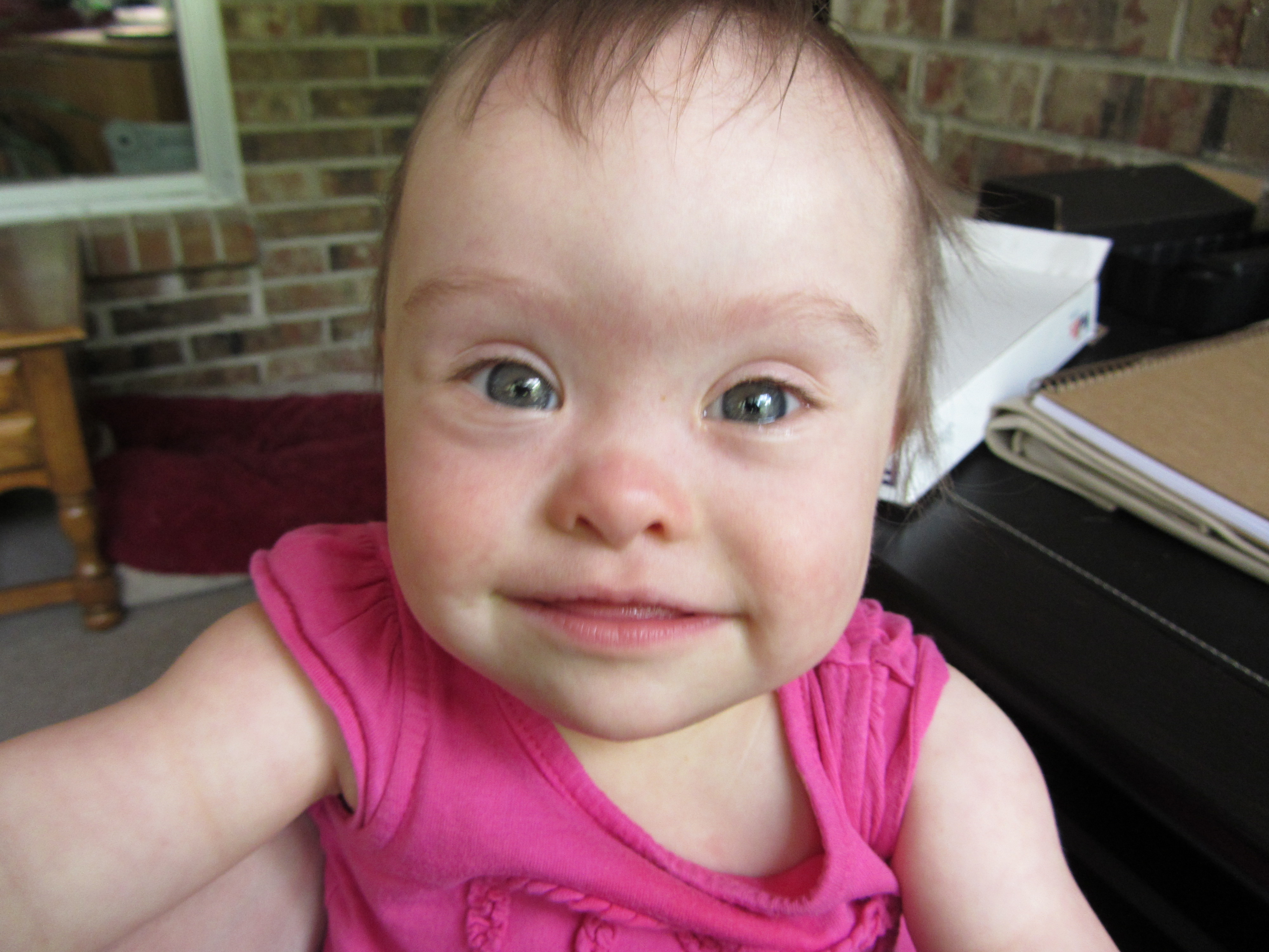 physical traits regarding straight down syndrome